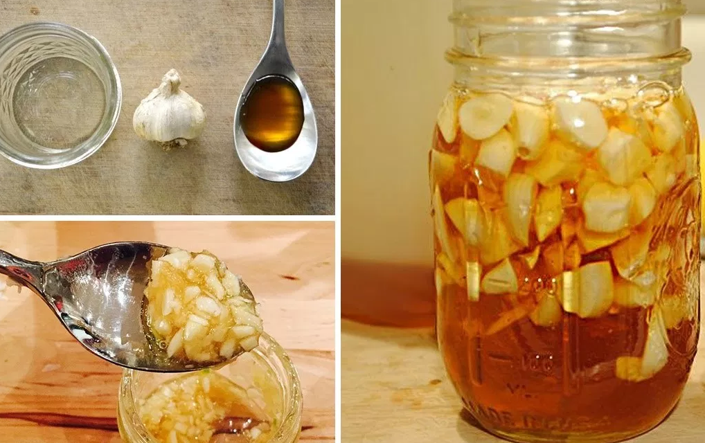 Here Are All The Benefits Of Fermented Garlic (Recipe)